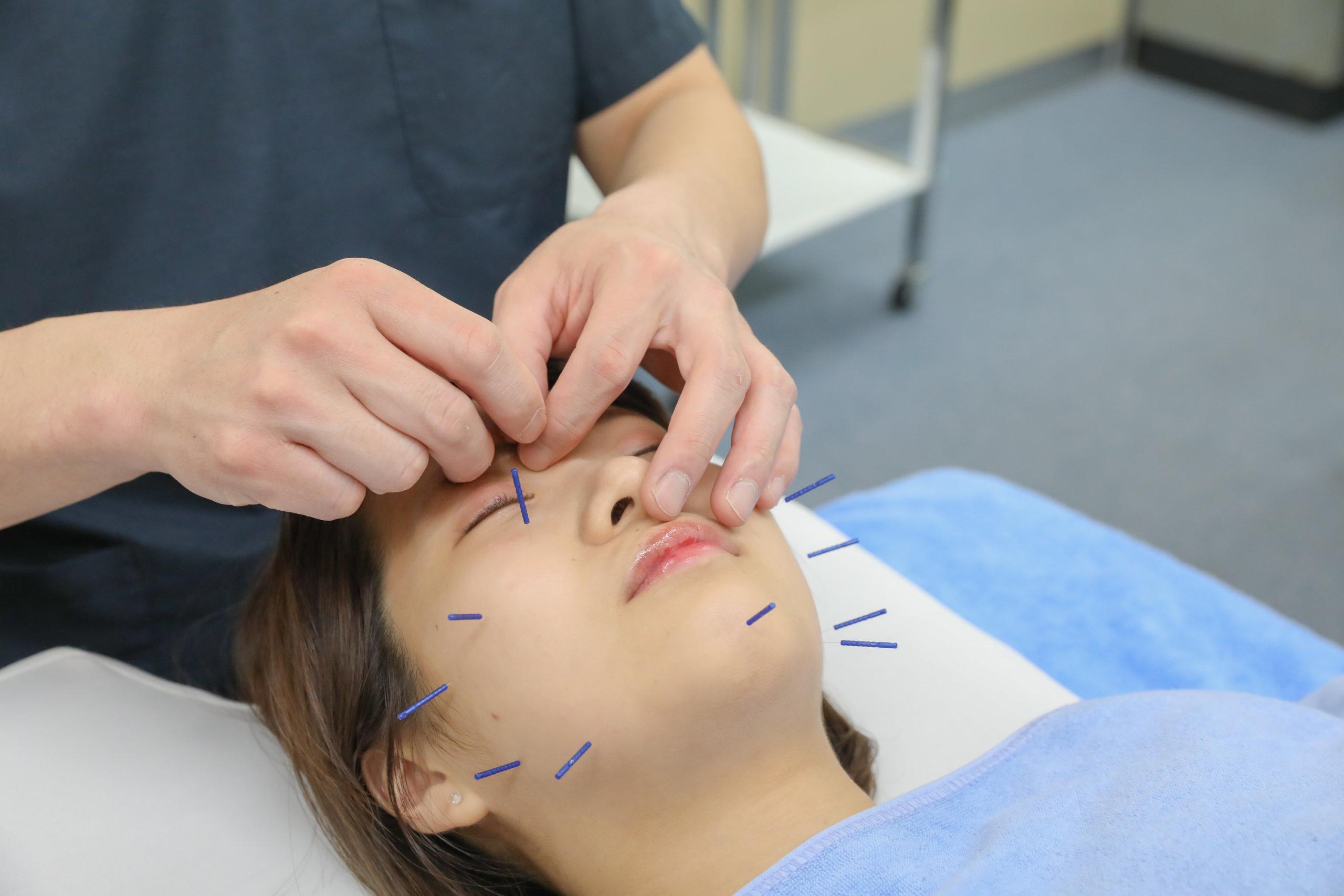 美容鍼施術の様子②